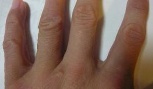 指アフター