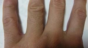指ビフォー