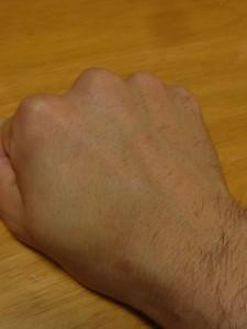 右手の甲ケノン3週間後
