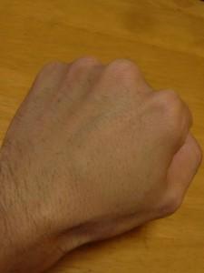 左手の甲ケノン3週間後