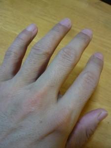 2週間後の左指