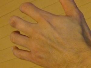 左手2か月後